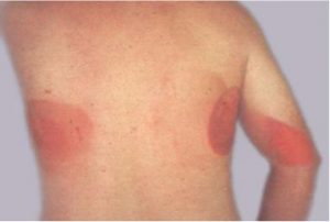 burn from large radiation dose
