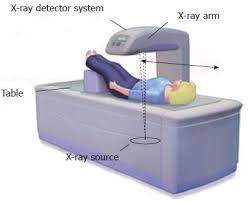 DXA scan analysis